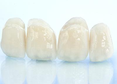 さくらプラチナム歯科_特徴4