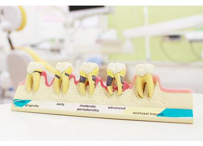 みやはら歯科医院_特徴2