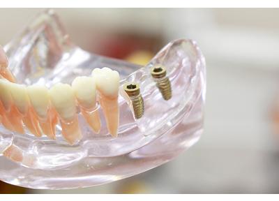 みやはら歯科医院_特徴4