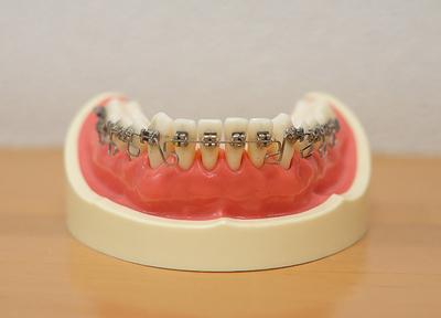 いずみ歯科矯正歯科医院_特徴3