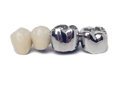 坂東歯科医院 ブリッジ
