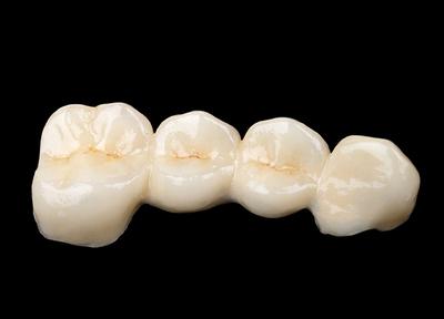 ナムラ御殿山ガーデン歯科_特徴4