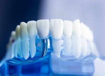 たかぎ歯科クリニック インプラント