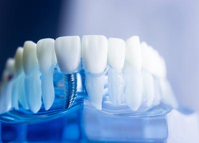 ほしば歯科クリニック インプラント