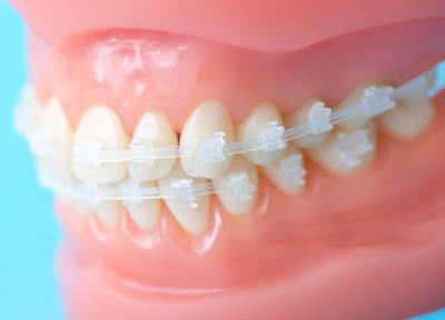 クリスタル歯科 矯正歯科