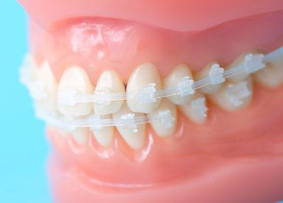 お子さまの歯並びを整えることも予防につながります。