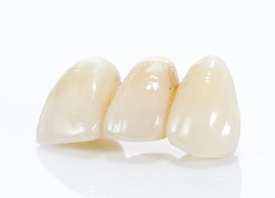 酒井歯科医院_特徴2