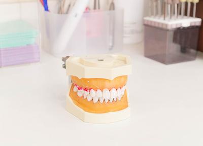歯周病は治療した後の予防も大切です