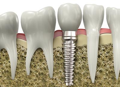 綾園歯科 インプラント