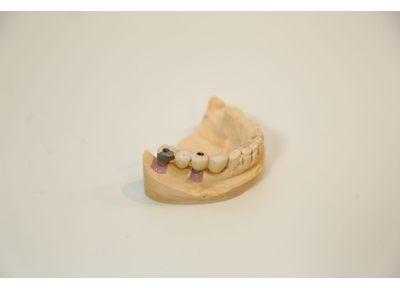 人工歯装着