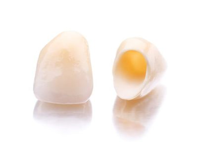 お口の環境を整えて、長い目で見てコストパフォーマンスに優れたセラミック治療を