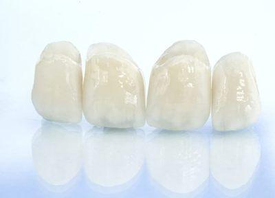 短期間かつ手軽に歯の色や形態を見栄えよくできる、ラミネートべニアの施術も行っています。