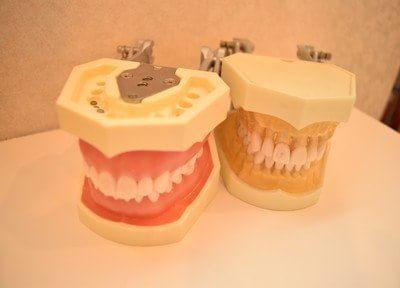 入れ歯の作製からメンテナンスまで、ご希望に合わせて対応
