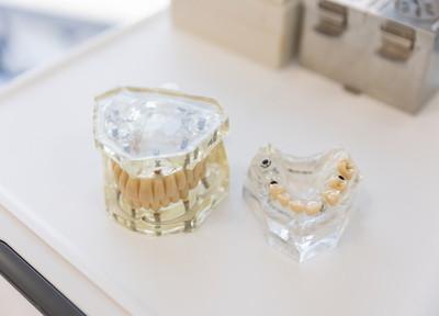 名古屋歯科 入れ歯・義歯