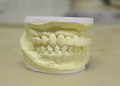 治療の後に歯茎が下がり、補てい物が台無しにならないよう、治療中に傷つけない配慮を