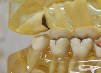 Q.抜歯を行う際に心がけていることはありますか?