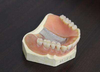 黒住歯科医院 入れ歯・義歯
