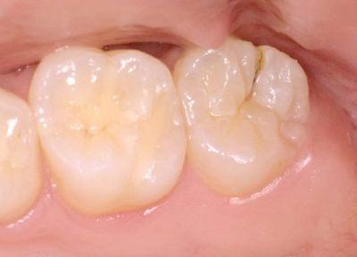 【保険診療】初期の虫歯は短時間の保険診療で治ります。早期発見・早期治療が大切です。