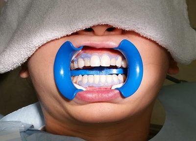 【自由診療】もっと白い歯をお望みなら、ホワイトニングをお奨めします。