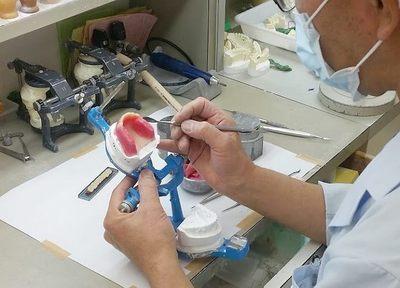 【保険診療】入れ歯が落ちる、痛い、噛めない、割れた等入れ歯でお困りではありませんか。