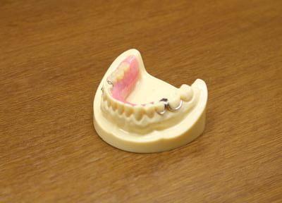 小林歯科クリニック 入れ歯・義歯
