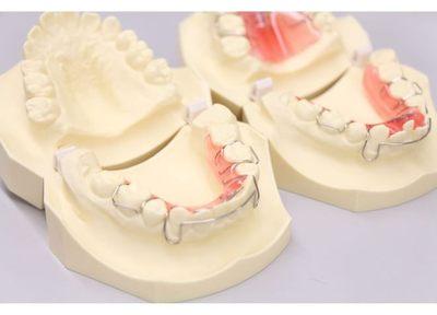 増野歯科医院 小児矯正