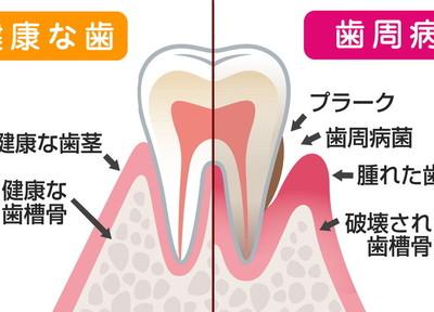 くにみ野さいとう歯科医院 歯周病