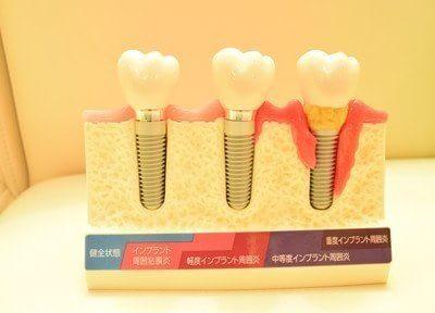 歯周病治療から歯を守ること