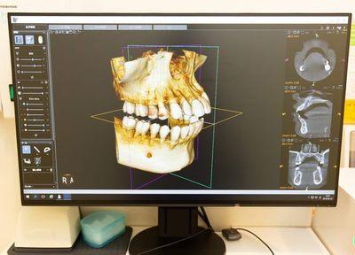 Q.顎関節症はどのような症状が見られますか?