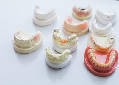 患者さまに合う入れ歯・義歯を
