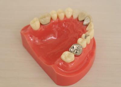 湘南つばめ歯科 被せ物・詰め物