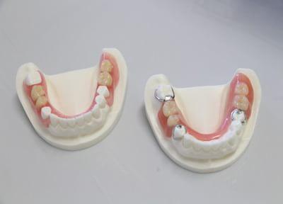 噛み合わせまで考える入れ歯の治療