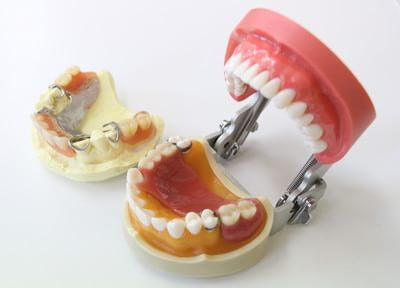 「しっかりと噛める」入れ歯・義歯をご提供します。入念な準備と丁寧なアフターフォローをいたします。