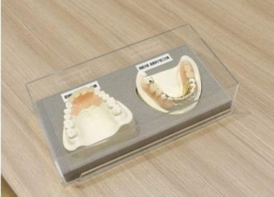 本多歯科 入れ歯・義歯