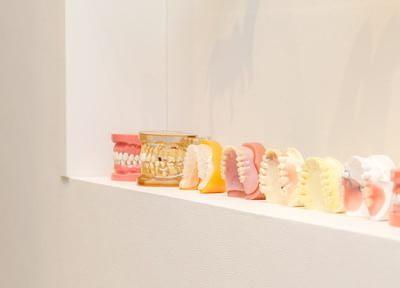 自然な歯に近いマグネット義歯