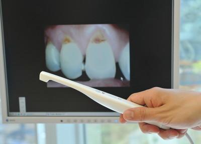ご自身では確認のできない口腔内の状態をカメラにて確認することができます。