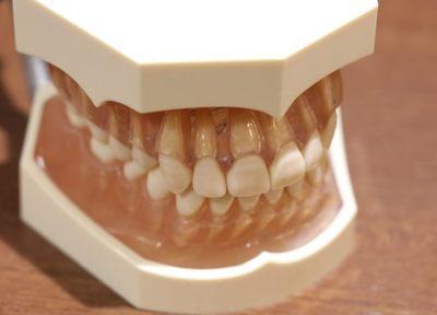 みずた歯科 つめ物・かぶせ物
