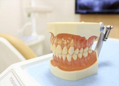 リーフデンタルクリニック 入れ歯・義歯