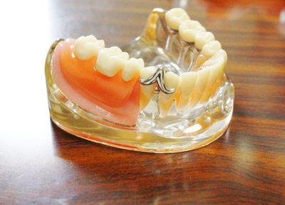 柔らかい素材や見た目に優れた入れ歯は、多くの患者さまにご好評をいただいております