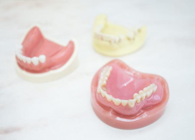 ただ噛むためだけでなく、残った歯を守るためにも入れ歯・義歯をおすすめします