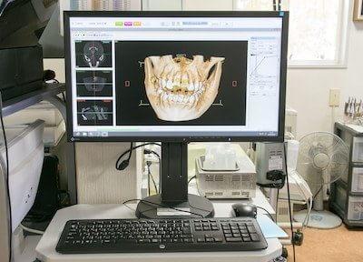 CTを使ってインプラント、顎関節症、歯周病の治療の方針を立てます。
