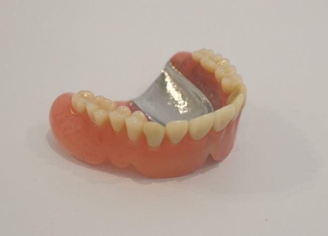 「金属床の入れ歯」など、ニーズにお応えする入れ歯を用意
