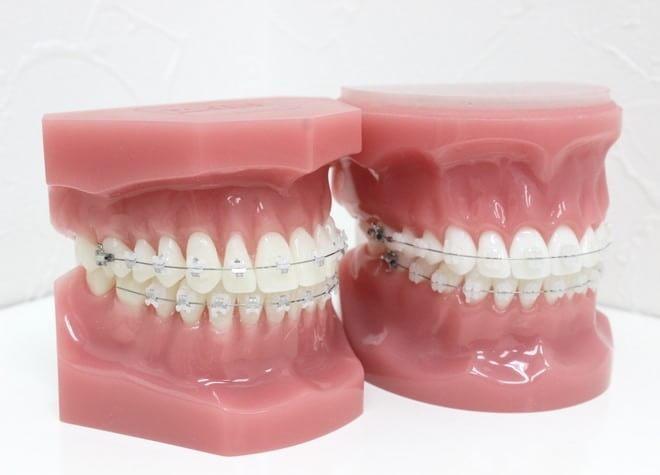 クリスタル矯正歯科クリニック6