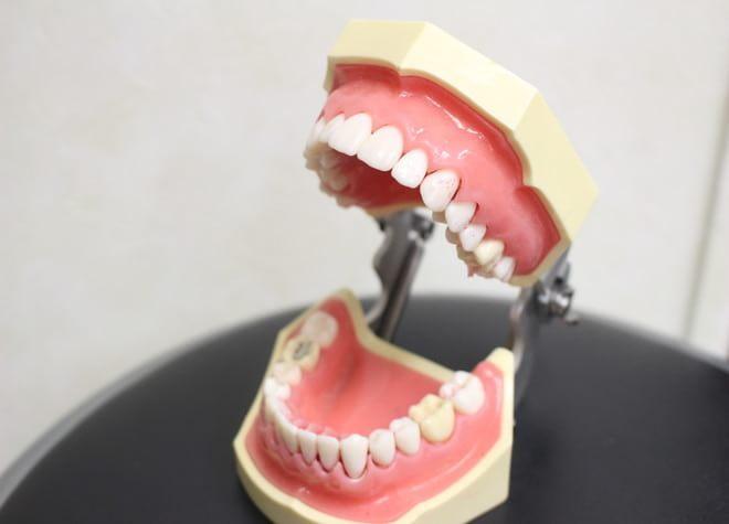 矯正は、笑顔に自信がつくと共に虫歯や歯周病のリスクを減らします