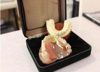 入れ歯治療で多くの患者さまが紹介でご来院。患者さまがしっかり噛めるようになるのが、当院の願いです