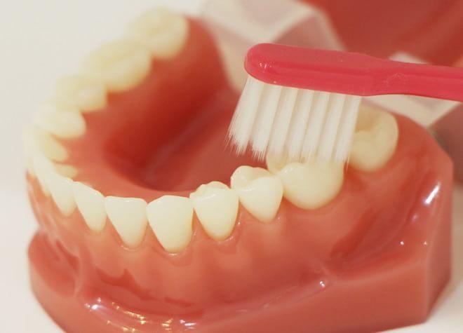 Q.虫歯治療において気を付けていることはなんですか?