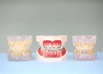 歯の模型です。歯に関することは何でもご相談下さい。