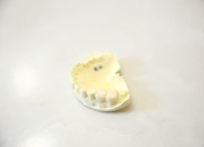歯科技工士が直接患者さまのご要望をお聞きします