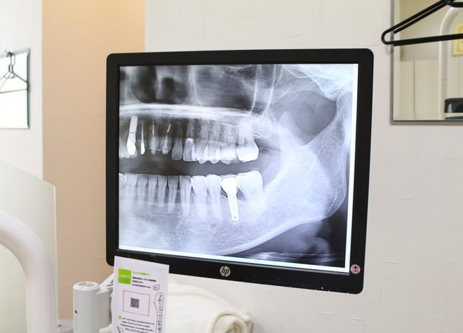 Q.手術前の診断をとても大切にしている理由は何ですか?