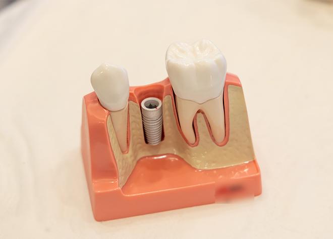 歯を初めて失ってしまった方にこそ、インプラント治療をご提案しています。